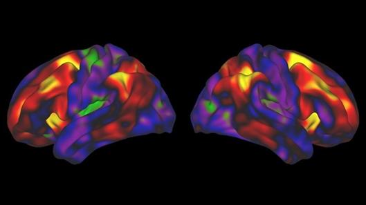 大脑模式;儿童;记忆能力